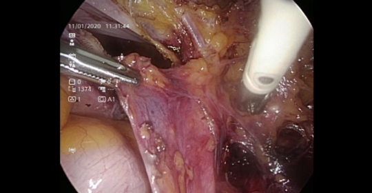 r ureteric dissection